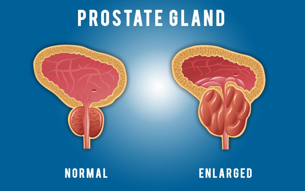 Prostate Gland Enlarged ProstaGenix Customer Reviews